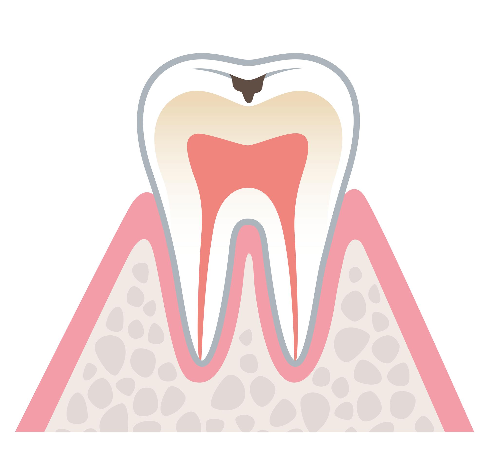 むし歯治療の進行度と治療方法 柏原 歯医者