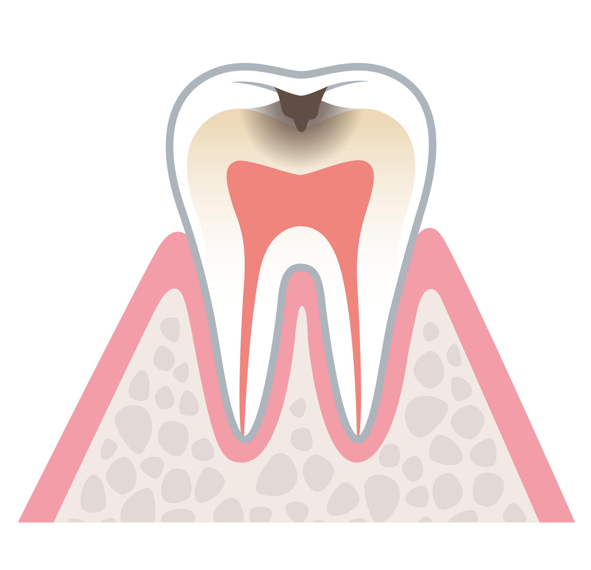 むし歯治療の進行度 柏原 歯医者