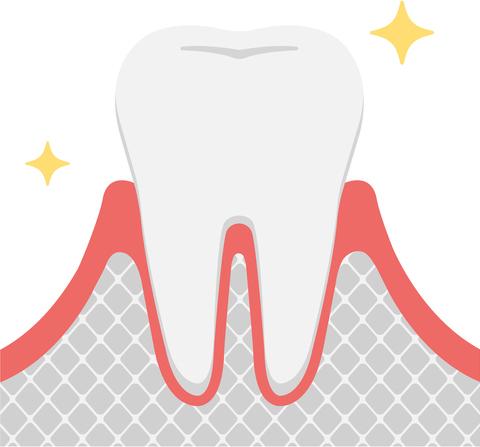 歯周病発症の進行度 健康な歯肉