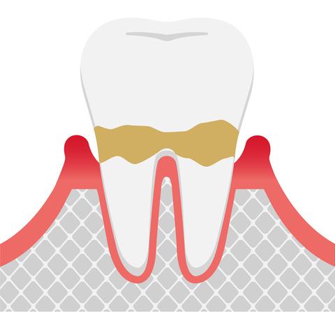 歯周病発症の進行度 軽度歯周病