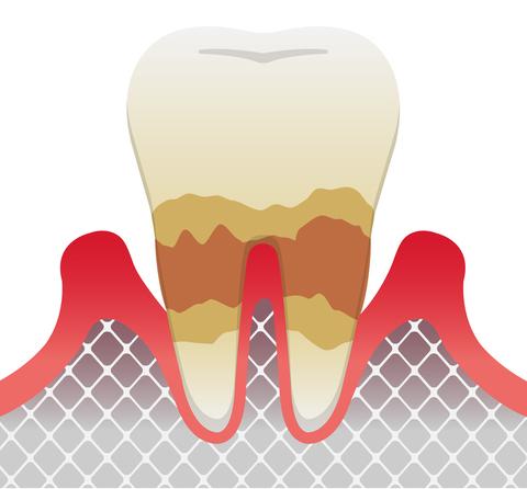 歯周病発症の進行度 中度歯周炎