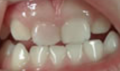 歯 が 折れ た 牛乳